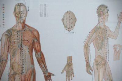 Akupunktterapi